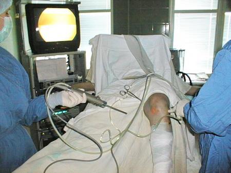 Артроскопия коленного сустава в кременчуге