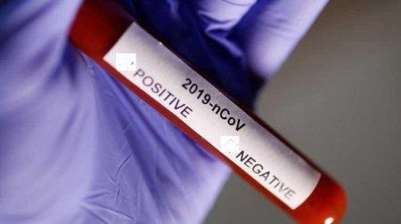 Результат пошуку зображень за запитом короновірус